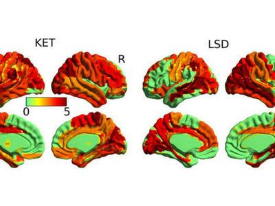 Сканирование мозга впервые обнаружило высшее состояние сознания