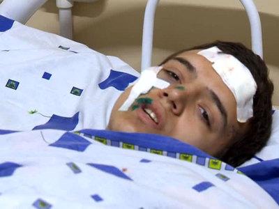 Взрыв гранаты в Агвали: в Дагестан направлены специалисты СКР