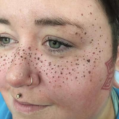 В США появился новый тренд – татуировки в виде веснушек на лице