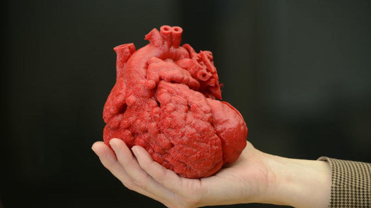 Медики напечатали на 3D-принтере модель сердца для спасения ребёнка