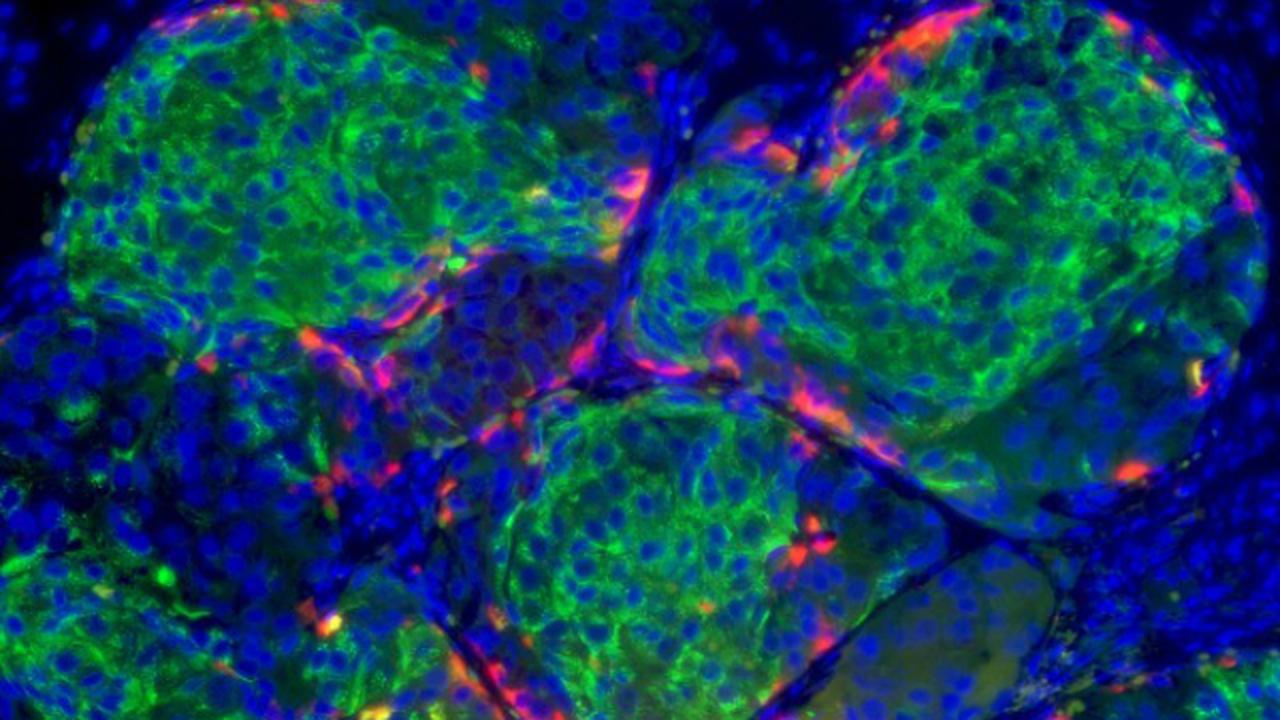 Диабет научились лечить стволовыми клетками