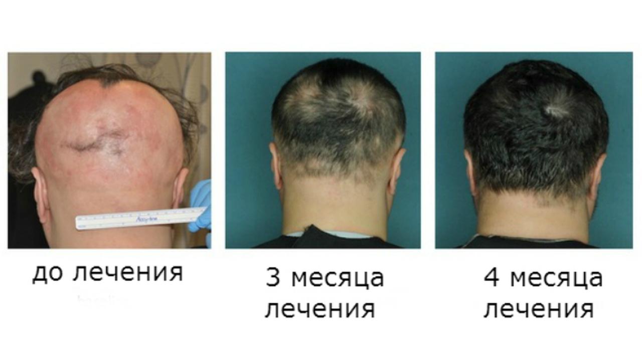 Новый препарат поможет вырастить волосы при облысении