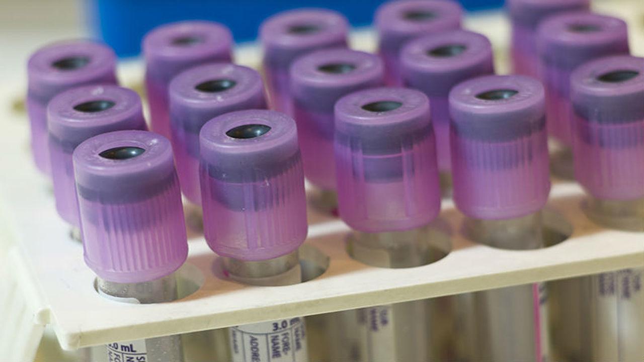 Споры вокруг нового метода: может ли анализ крови точно диагностировать аутизм?