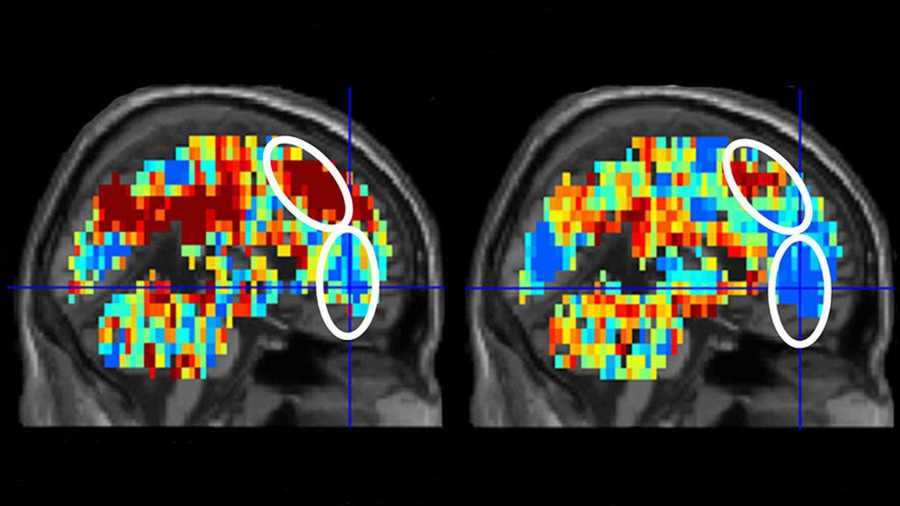 Визуализация работы мозга помогла выявить суицидальные наклонности