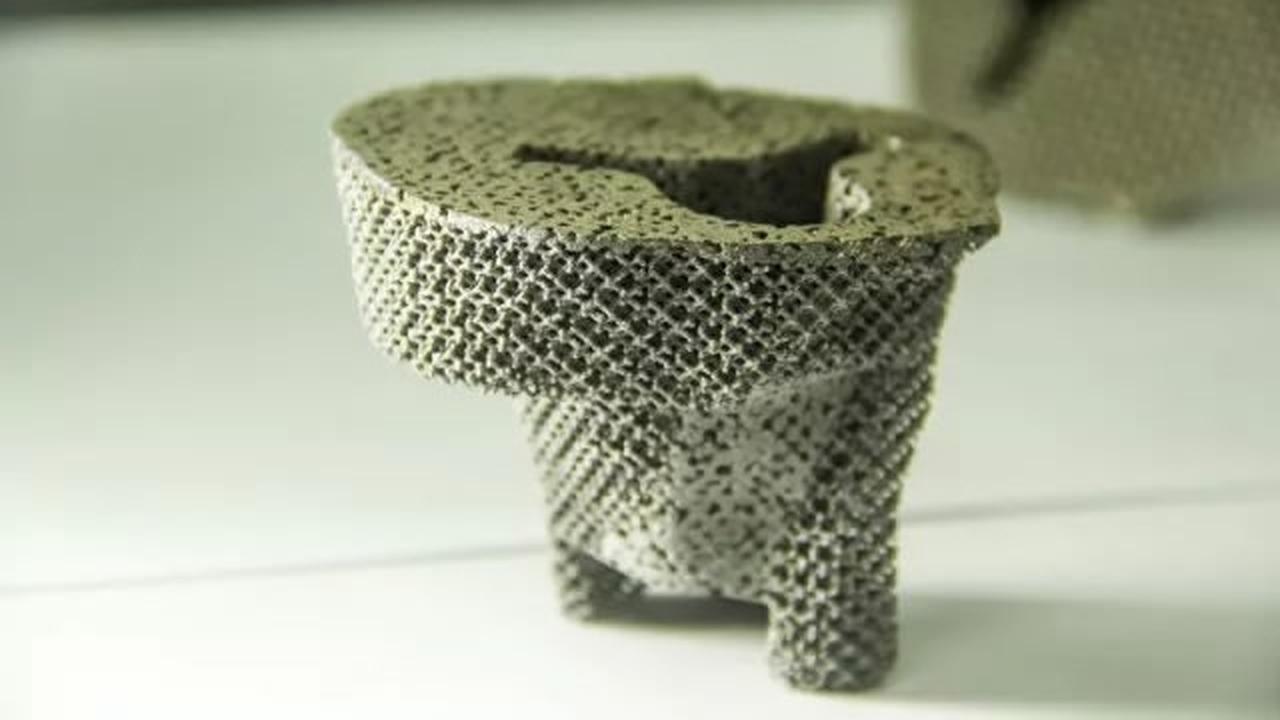 Хирурги впервые пересадили пациенту коленный сустав с напечатанной костной тканью