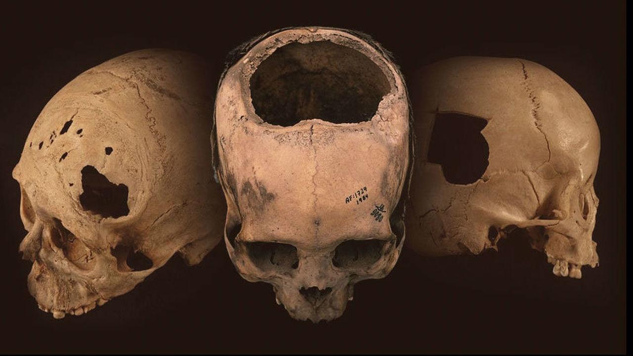 Древние инки делали трепанацию черепа лучше медиков времён Гражданской войны в США