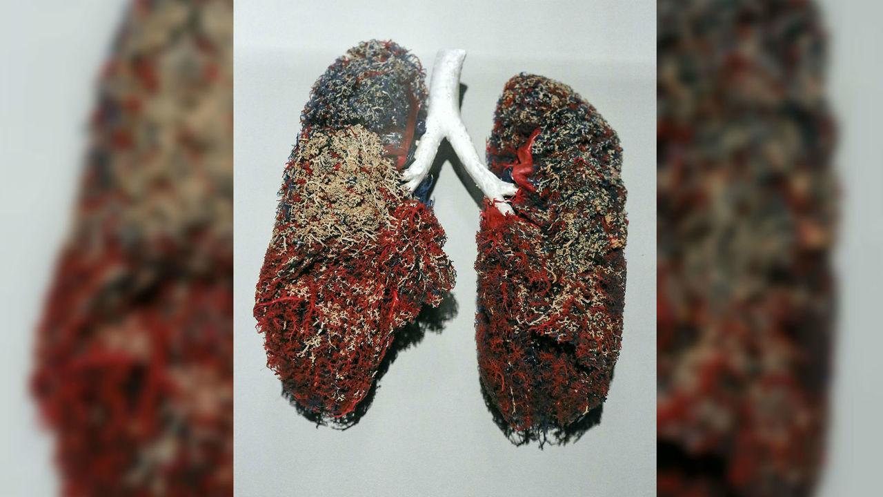 Первая в мире пересадка биоинженерного лёгкого признана успешной