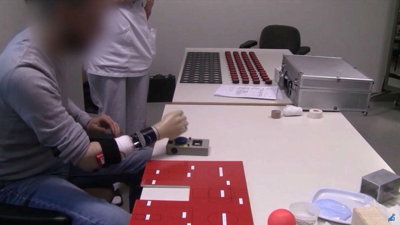 Новый искусственный сустав вернёт пациентам с протезами рук двигательную активность запястья