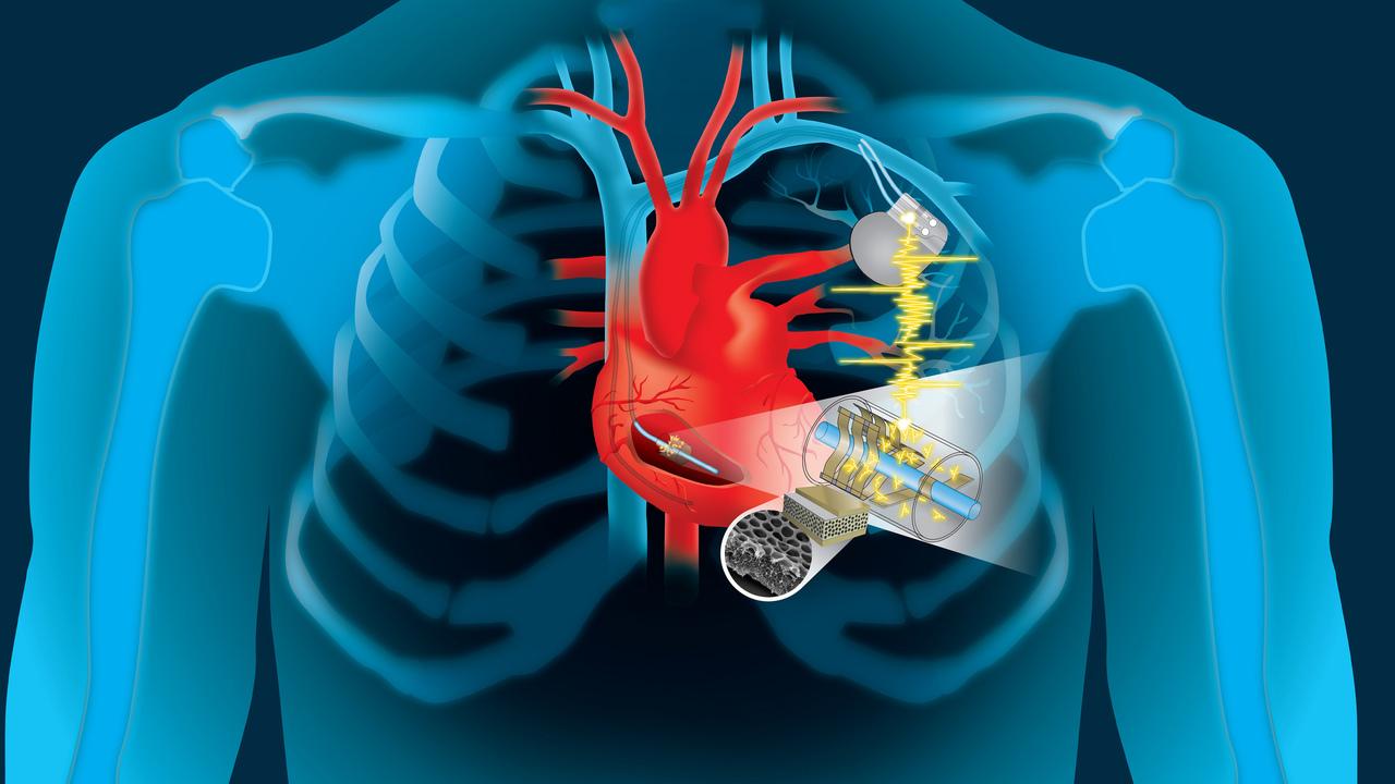 Батареи имплантатов можно будет заряжать от биения сердца