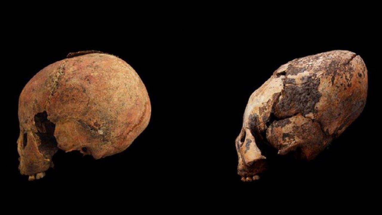 """""""Сделано в Китае"""": маленьким детям тысячелетиями деформировали черепа"""