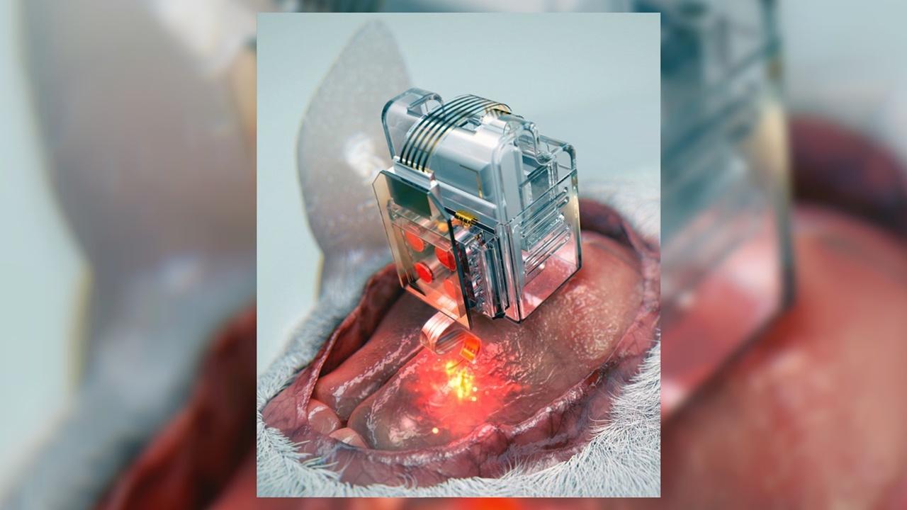 Создан первый беспроводной имплантат для непрерывной доставки лекарств и воздействия светом на клетки мозга