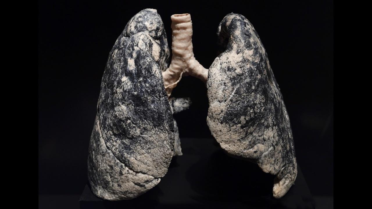 Дышать загрязнённым воздухом – всё равно, что выкуривать по пачке сигарет в день