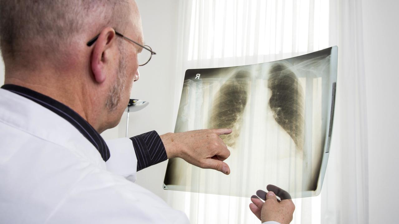 В лёгких полных людей впервые обнаружены жировые отложения
