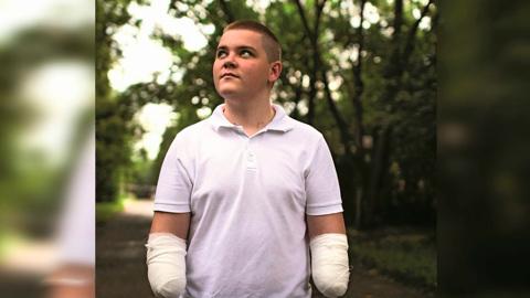Вести. Лишившийся рук при спасении котенка подросток отсудил у энергетиков 5 млн рублей