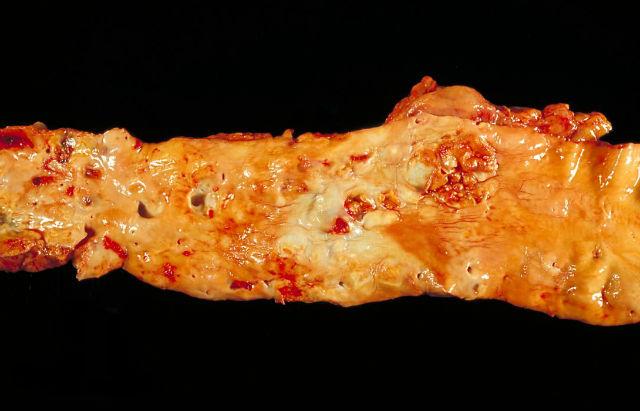 При атеросклерозе APOA1 окисляется, на стенках сосудов образуются бляшки