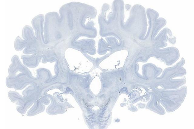 Ткань мозга окрашивали для визуализации отдельных клеток