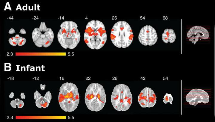 МРТ демонстрирует различие в активности мозга у взрослых и детей во время ощущения боли. Красно-желтые зоны - активные области мозга. Справа - срезы, по которым проводилось сканирование