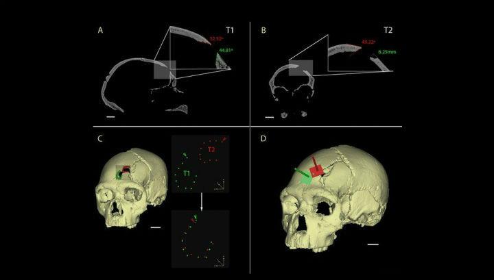 Визуальная реконструкция черепа позволила установить, что оба удара были сделаны одним и тем же предметом с примерно одинаковой силой
