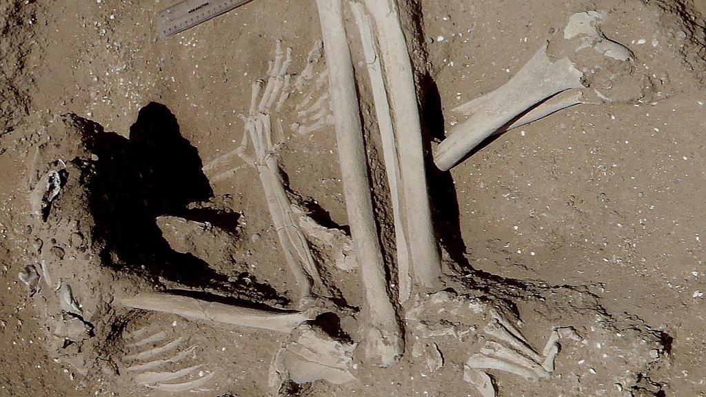 Туркана. Скелет женщины со следами переломов конечностей. Фото: Cambridge University