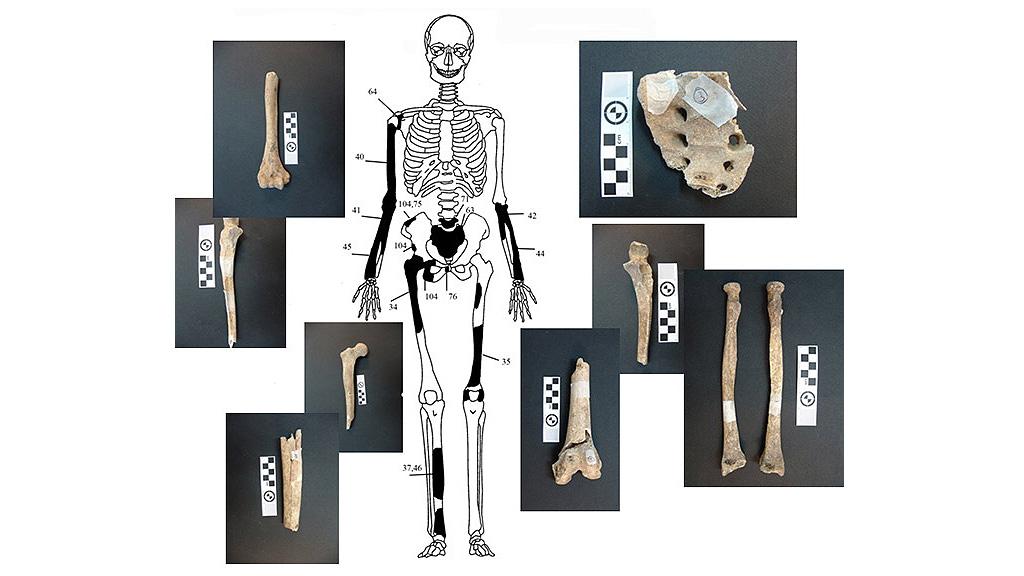 Один из скелетов, обнаруженных в гробнице на холме Каста. Изображение с сайта amfipolis.com