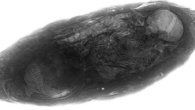 Рентгеновская проекция ископаемого паразита, где оса хорошо видна внутри куколки.