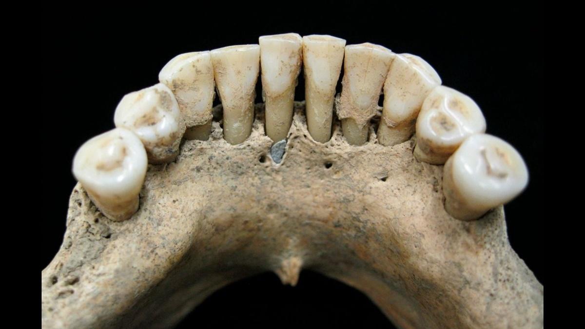 Нижняя челюсть средневековой женщины. Зубной камень содержит частицы ультрамаринового пигмента, которые указывают на то, что женщина работала над ценными иллюстрированными рукописями.