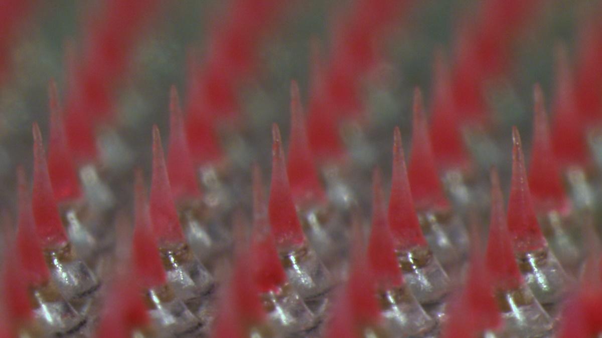 Микроиглы пластыря под микроскопом. Их высота менее одного миллиметра.