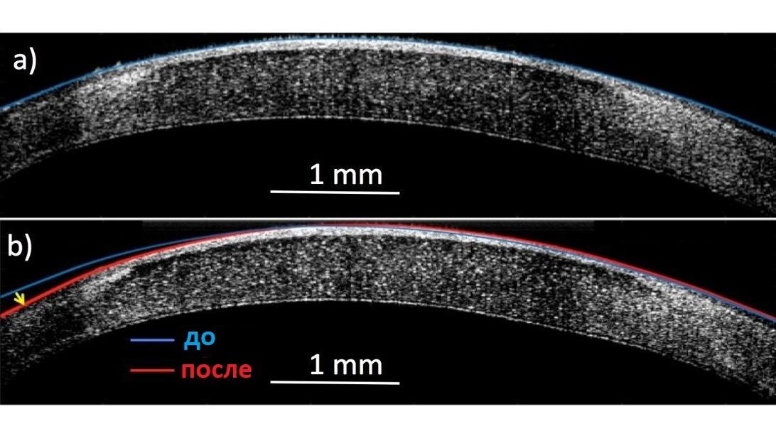 Новое нетравматическое вмешательство изменяет кривизну роговицы из состояния а (синяя линия) в состояние b (красная линия), таким образом улучшая зрение пациента.