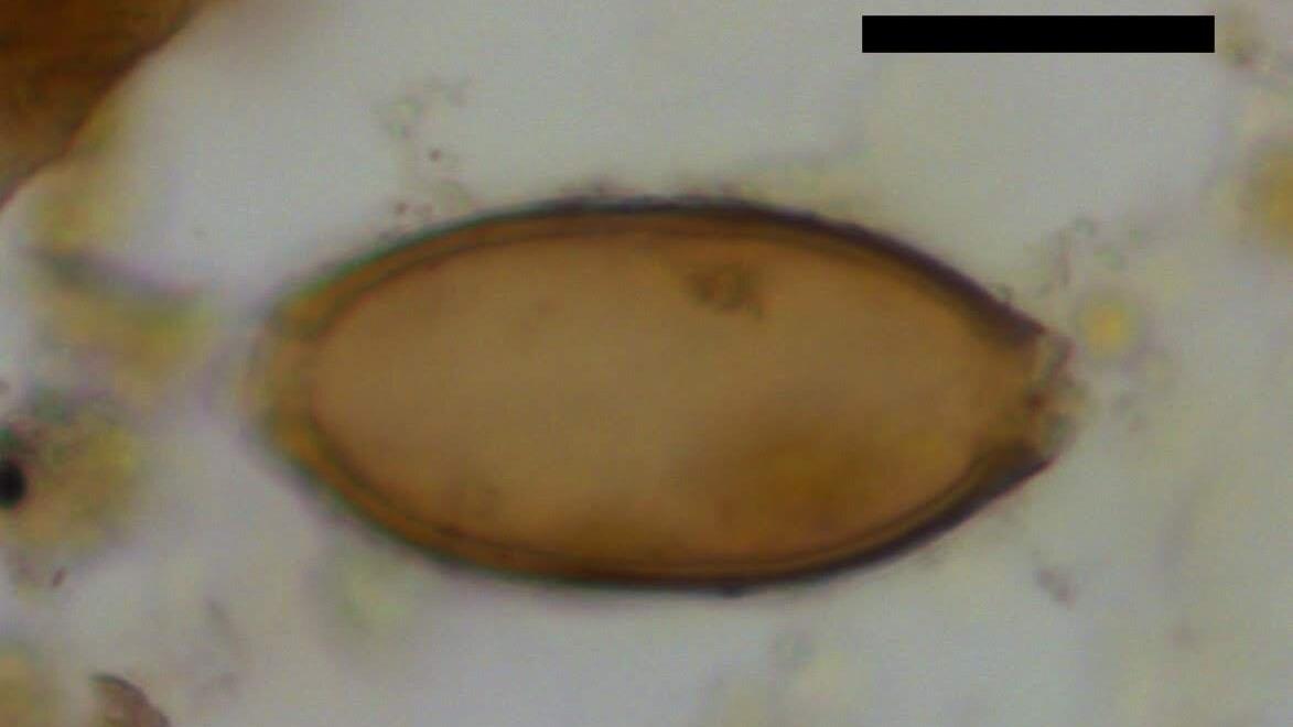 Микроскопическое яйцо власоглава, найденное в ходе изучения копролитов на территории поселения Чаталхёюк. Чёрная планка имеет длину 20 микрометров.