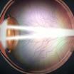 Отслойка сетчатки и другие опасные последствия близорукости