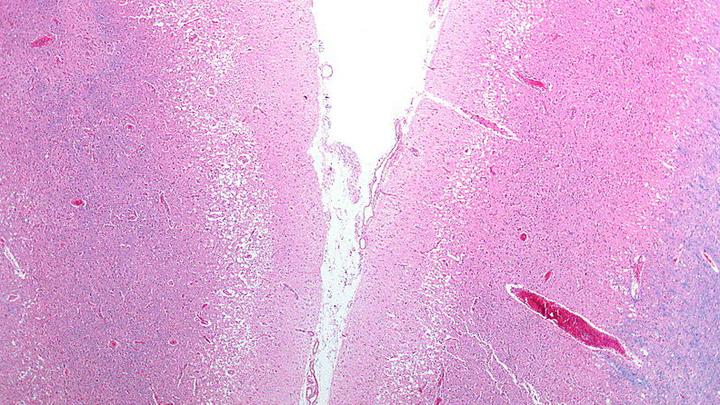 Микрофотография, демонстрирующая псевдоламинарный некроз. Снимок сделан при вскрытии человека, умершего от инсульта