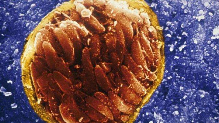Микрофотография паразита Toxoplasma gondii в кисте в мозге заражённой мыши