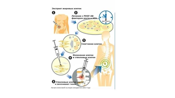 Новая методика, которая перепрограммирует костные ткани и жировые клетки в мультипотентные стволовые клетки, была успешно опробована на мышах