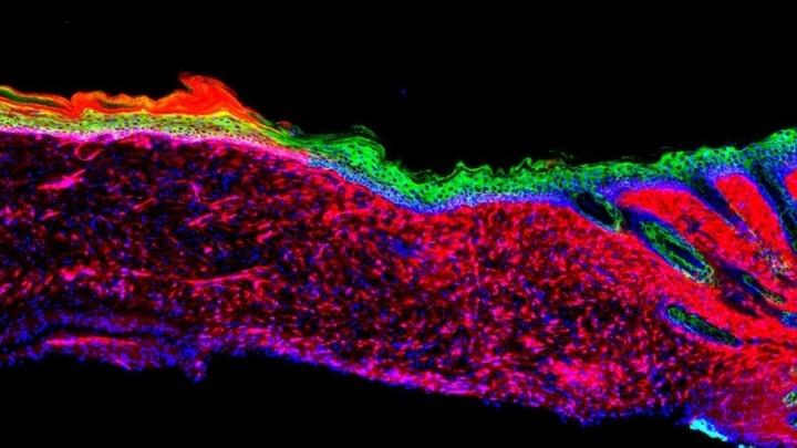 Мезенхимальные клетки мыши (красные) преобразуются в базальные кератиноциты (зелёные).
