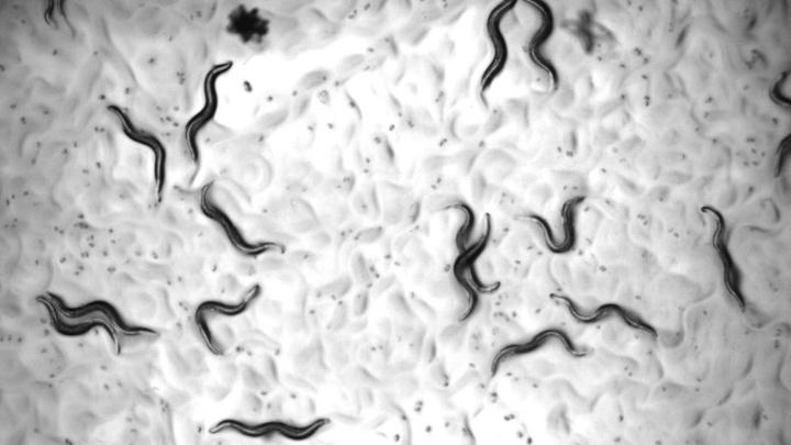 """Черви вида Caenorhabditis elegans под микроскопом. Они первыми испытали на себе чудодейственный эффект """"коктейля молодости""""."""