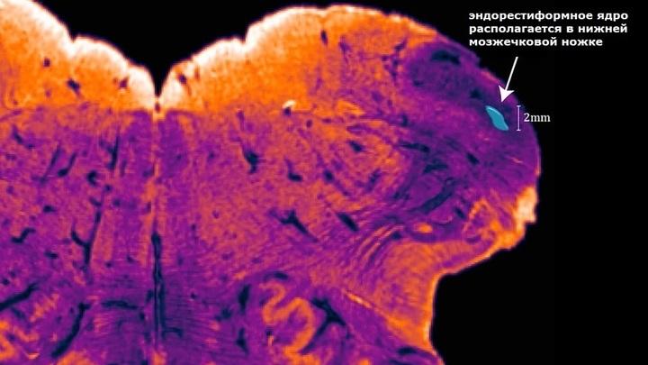 Учёные разглядели эндорестиформное ядро благодаря окрашиванию ферментом под названием ацетилхолинэстераза.
