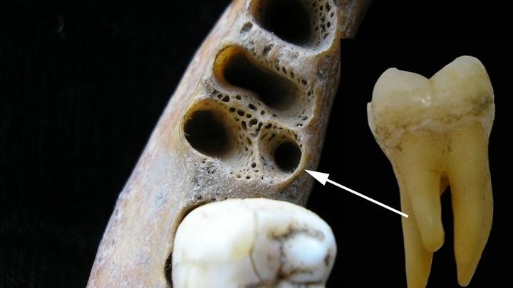 Некоторые современные люди унаследовали от денисовцев строение зубов. На снимке показана челюсть человека, жившего в Азии относительно недавно, и первый нижний трёхкорневой моляр.