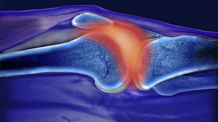 В настоящее время лечение ревматоидного артрита направлено в основном на облегчение боли, а не устранение самого аутоиммунного расстройства.