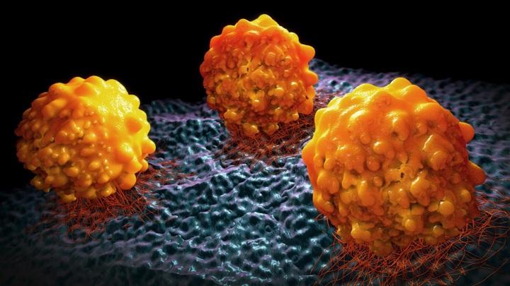 Учёные выяснили, что раковые клетки, имеющие запас липидов, более склонны к метастазированию.