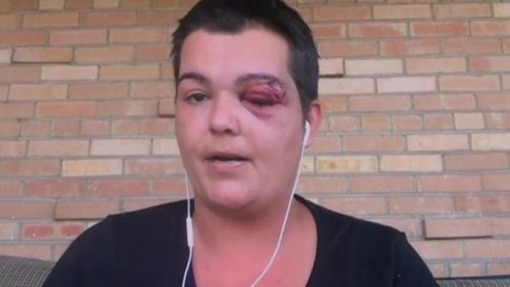 Правозащитники требуют от властей США прекратить нападения полиции на журналистов