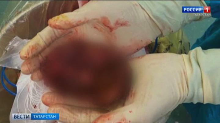 В Казани пенсионерка прожила 34 года с огромным червем в печени