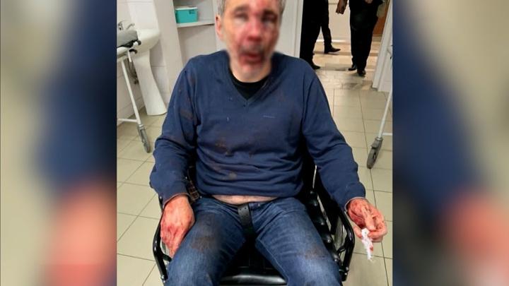 Учителя, обстрелянного в Нальчике, перевели в обычную палату