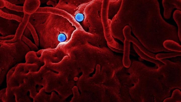 В РАН прокомментировали сообщения об эпидемии неизлечимой половой инфекции
