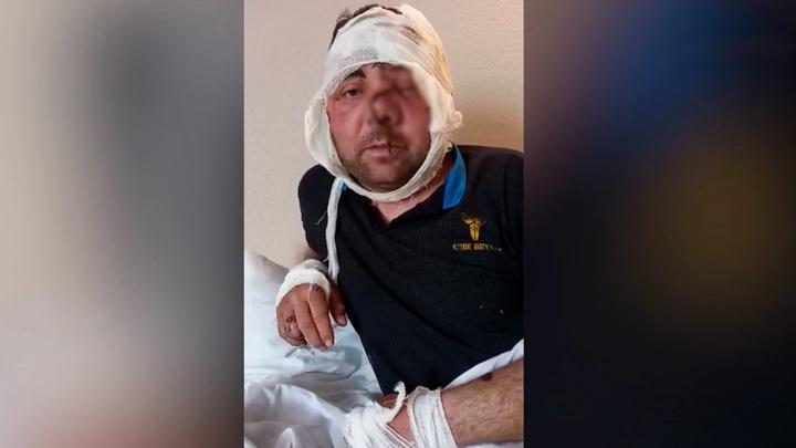 Жуткие травмы: житель Башкирии записал видео после нападения медведя