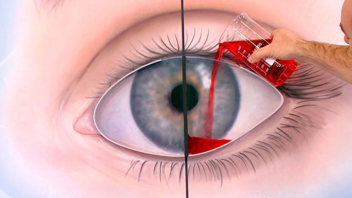 """Кадр из программы """"О самом главном"""". Как артрит влияет на наше зрение"""