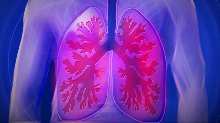 От бронхиальной астмы страдают порядка 340 миллионов людей во всём мире.