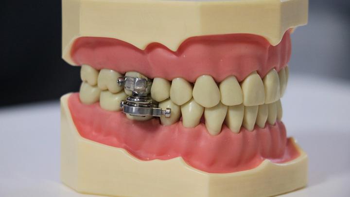 """Устройство устанавливается на задние зубы, после чего рот запирается на магнитный """"замок""""."""