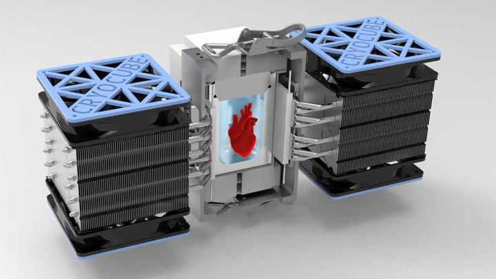 Изохорная камера обеспечивает суперохлаждение донорского органа.